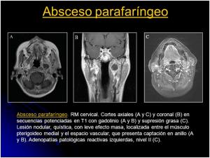 absceso parafaringeo
