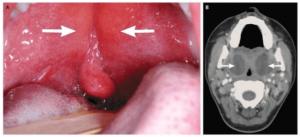 absceso periamigdalino