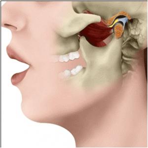 artitris temporomandibular