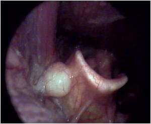 cirugía tumores benignos