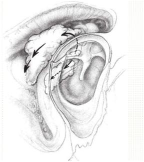 cirugía colesteatoma