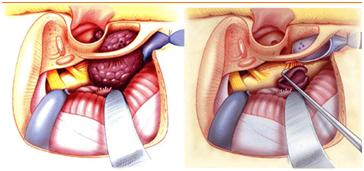 cirugía glomus