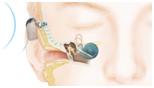 cirugía hipoacusia neurosensorial