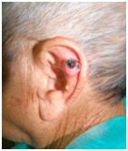 cirugia tumores pabellon