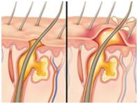 infección pelo conducto