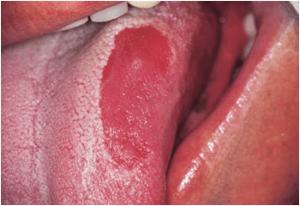 leucoplasias eritoplasias orales