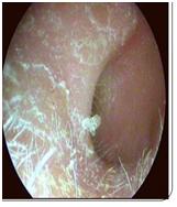 otitis eccematosa cronica