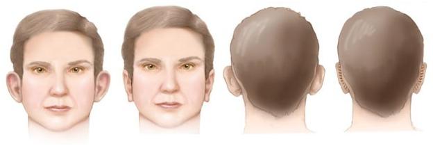 tumores benignos otoplastia