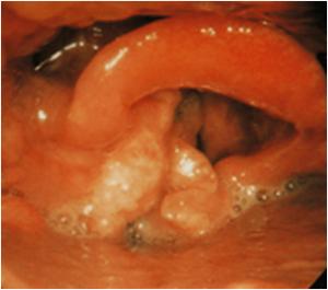 tumores hipofaringe