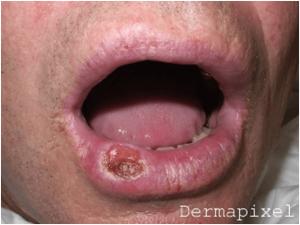 tumores labio