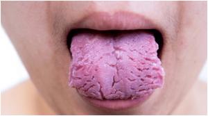 lengua escrotal