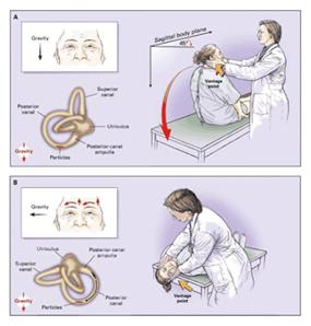 vértigo posicional benigno