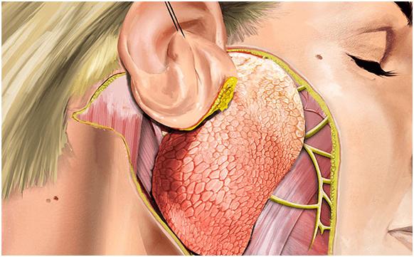 cirugia glandula parotica