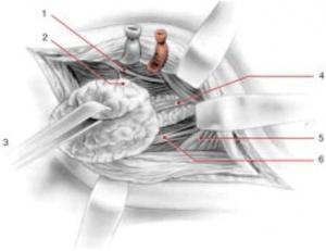 cirugia glandula submaxilar