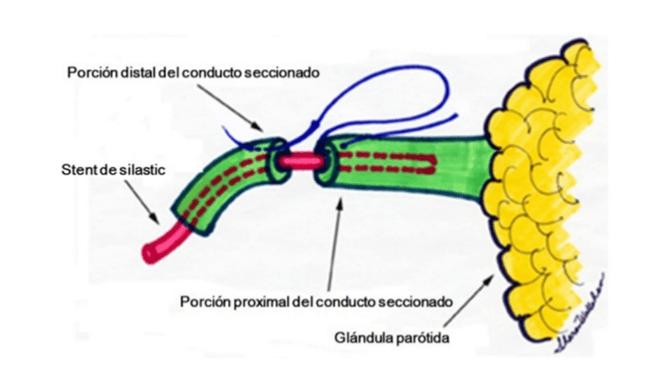 heridas patología glándulas salivares